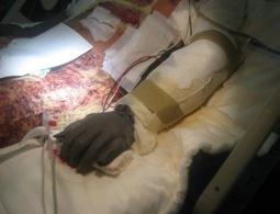 wound-trauma-dressing-7.jpg